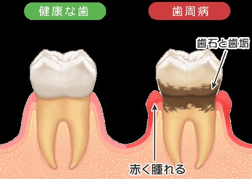 腫れ 歯茎 痛い の 歯茎の腫れ :歯科医師