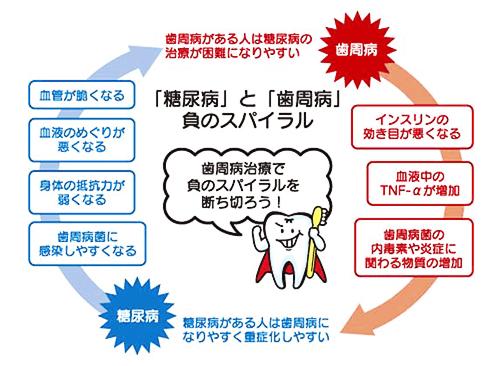 糖尿病と歯周病の負のスパイラル