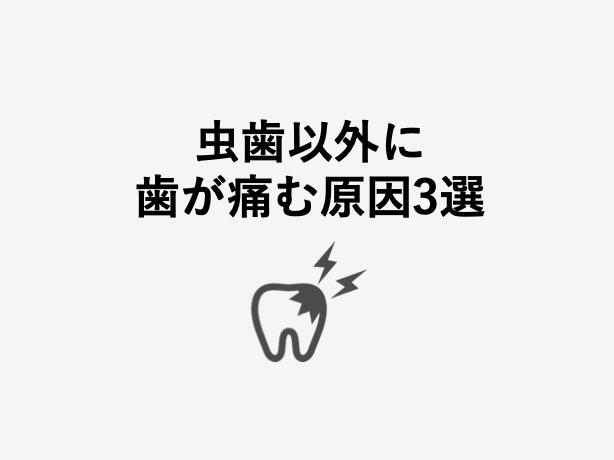 虫歯以外に歯が痛む原因まとめ